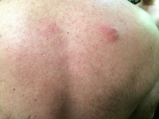BackHair&Injury