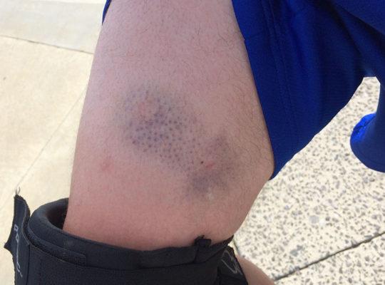 Bruise02